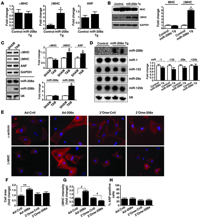 miR-208a overexpression induces hypertrophic gene expression. (A) Transc...