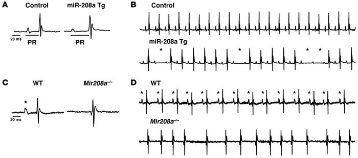 miR-208a is sufficient to induce arrhythmias and is required for proper ...