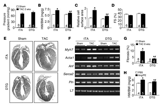 PMCA4b overexpression does not alter the Ca2+ transient or fractional sh...