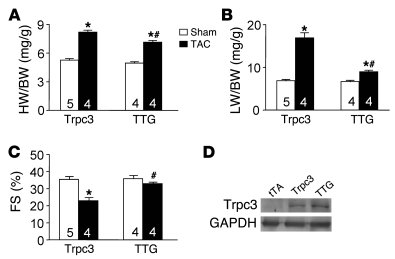Pmca4b overexpression attenuates Trpc3-enhanced cardiac hypertrophy. (A)...