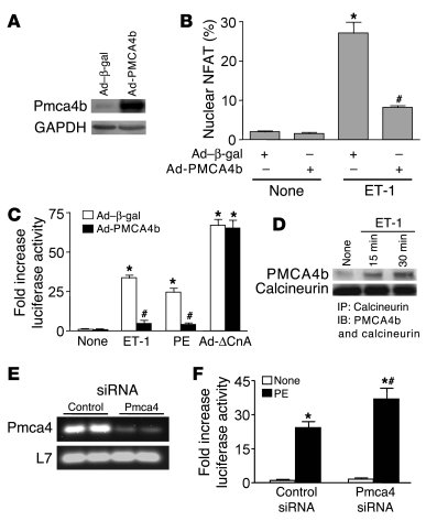 PMCA4b overexpression blunts calcineurin/NFAT activity in cultured neona...