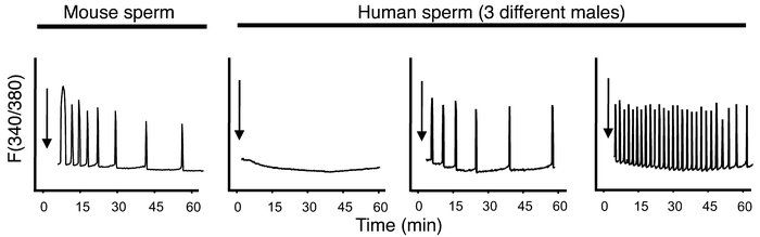 Injection of mouse and human sperm into mouse eggs induces [Ca2+]i oscil...