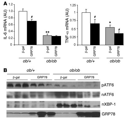Expression of cytokines and ER stress markers in the livers of ob/+ and ...