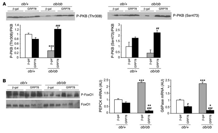 Consequences of GRP78 overexpression on PKB and FoxO phosphorylation and...