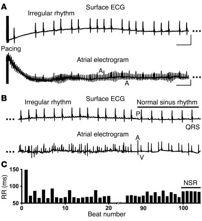 Ryr2R176Q/+ knockin mice are vulnerable to pacing-induced AF.     (A) R...
