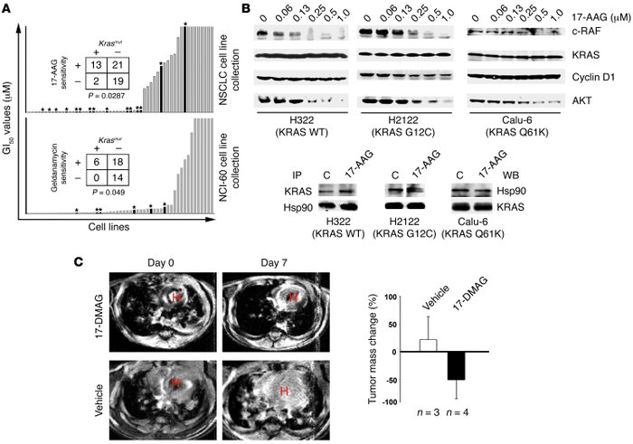 KRAS mutations predict response to inhibition of Hsp90 in vitro and in ...