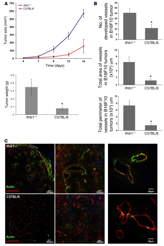 Enhanced tumor growth and angiogenesis in Ifnb1–/– mice.     (A) Growth ...