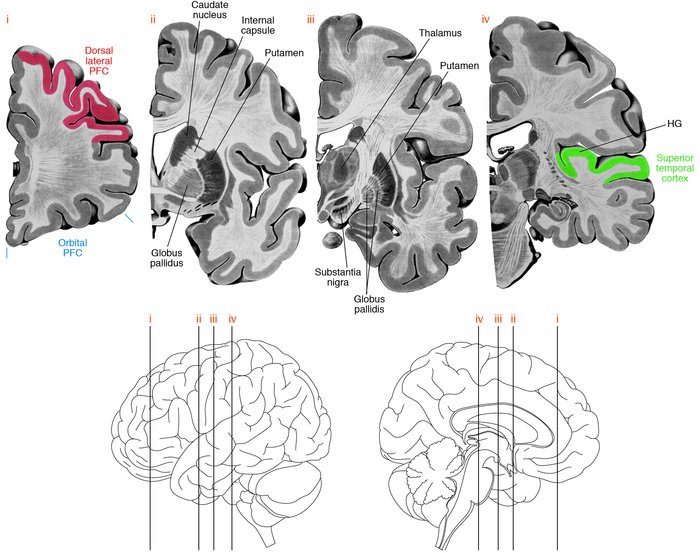 Brain regions involving neural circuitry disturbances in schizophrenia. ...