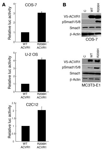 Mutant ACVR1 (c617A; R206H) activates the BMP signaling pathway. (A) Act...