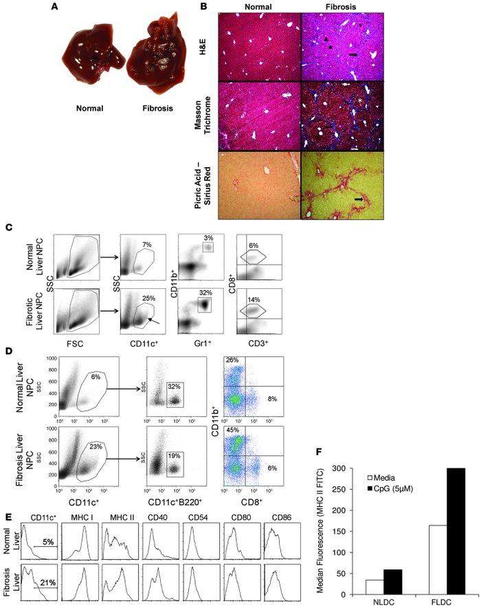 Hepatic fibrosis alters the composition of liver NPC and DC phenotype. (...