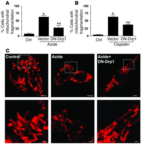 Suppression of mitochondrial fragmentation during RPTC injury by DN-Drp1...