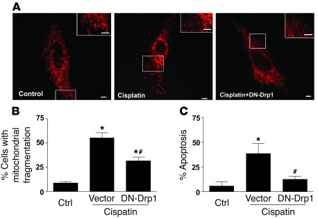 Mitochondrial fragmentation and its inhibition by DN-Drp1 in primary cul...