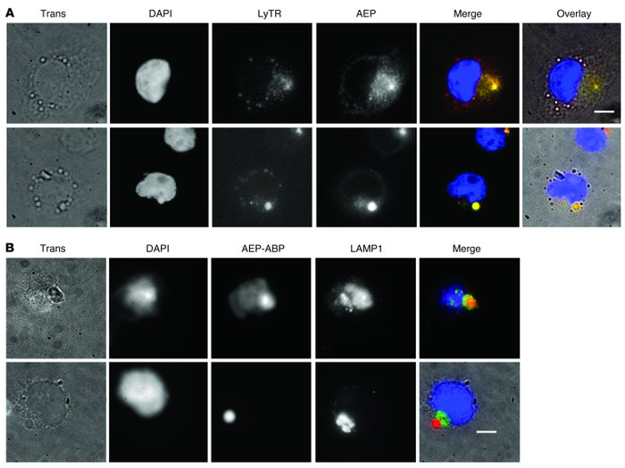 Mature active AEP in SD1 cells accumulates toward the cell periphery in ...