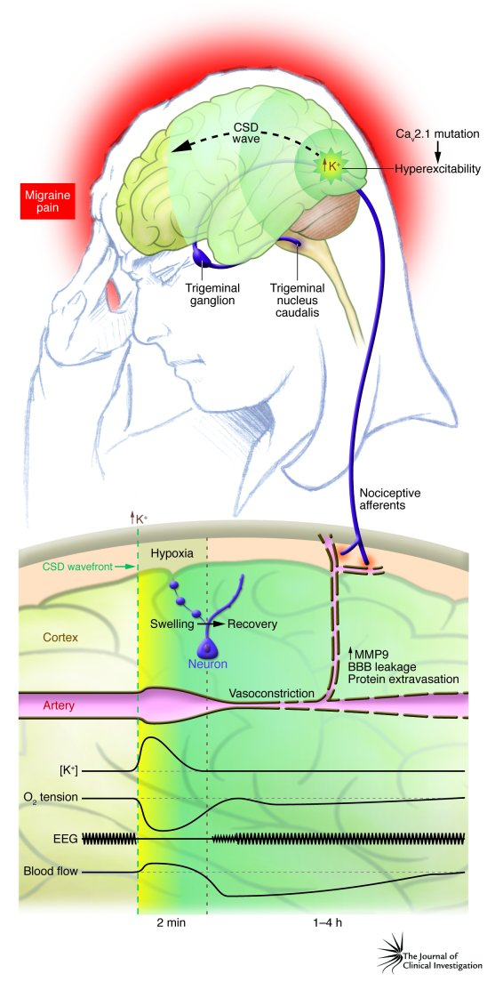 The link between CSD and migraine pain. CSD is most often initiated in t...