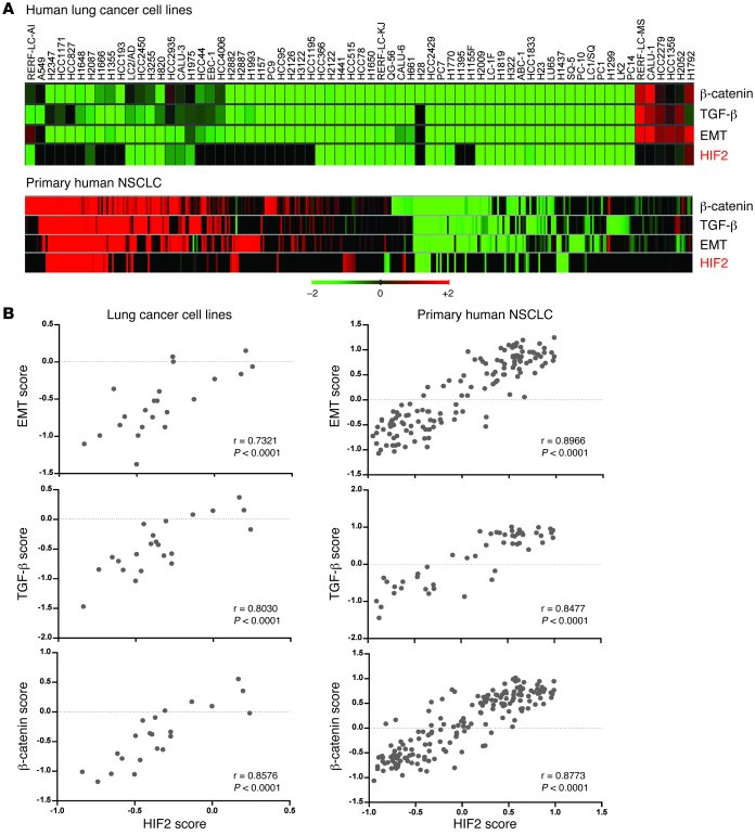 Association between HIF2α activation and EMT gene signatures in human lu...