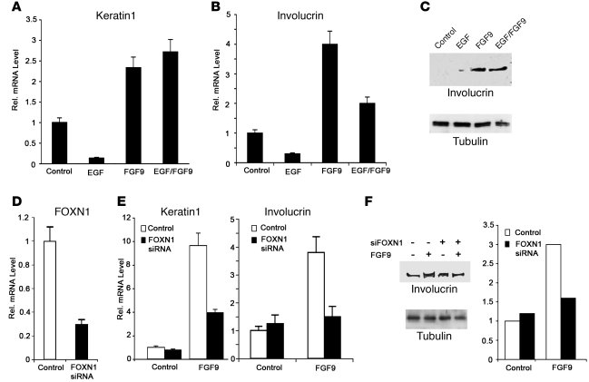 FGFR3 activation induces keratinocyte differentiation through a FOXN1-de...