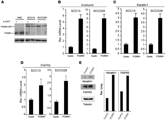 Increased FOXN1 expression in SCC cells induces FGFR3 expression and pro...
