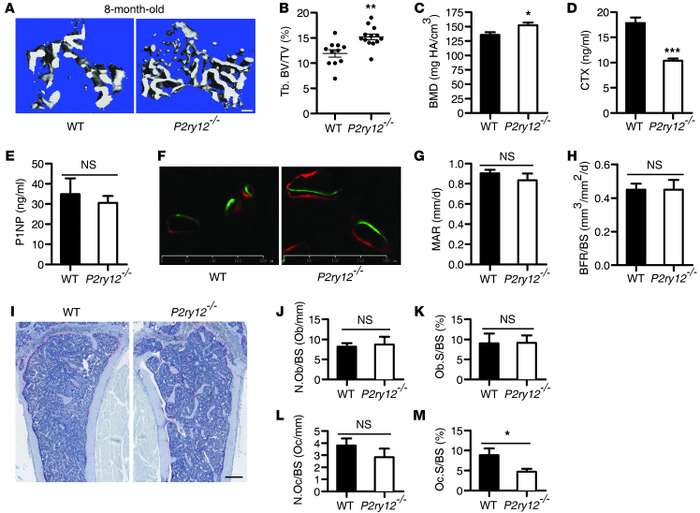P2ry12–/– mice were protected from age-associated bone loss.   (A–C) Th...