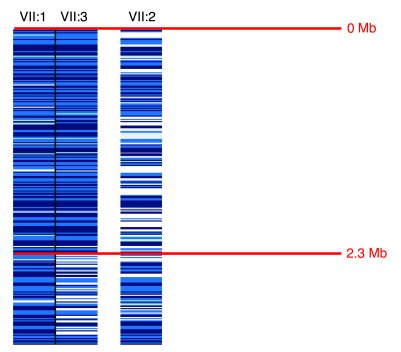Localization of the disease locus on chromosome 5 on a 250K Affymetrix S...
