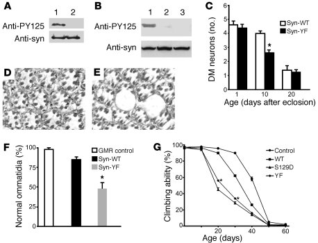 Blocking tyrosine phosphorylation increases α-synuclein toxicity. (A) Th...