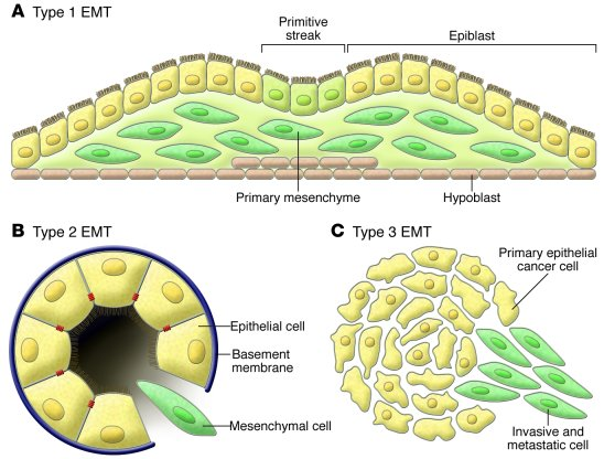 Different types of EMT. (A) Type 1 EMT is associated with implantation a...