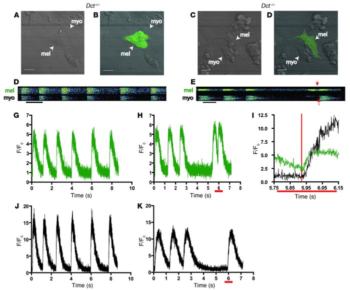 Dct–/– cardiac melanocytes display spontaneous calcium oscillations.   ...