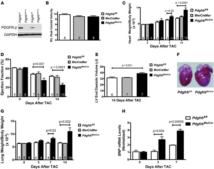 Inducible, cardiac-specific PDGFR-β–knockout mice develop severe heart f...
