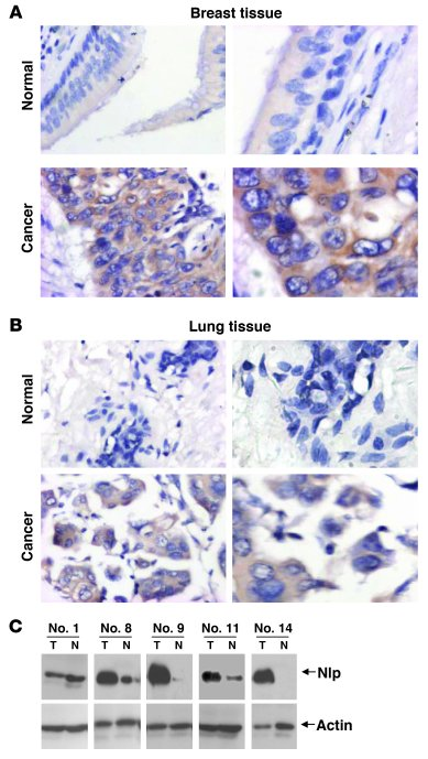 Deregulated expression Nlp in human lung and breast carcinomas. (A) Norm...