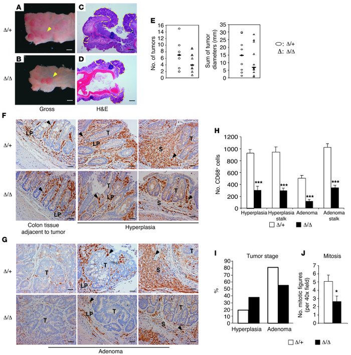 Loss of TAM HIF-2α leads to reduced tumor burden and progression in muri...