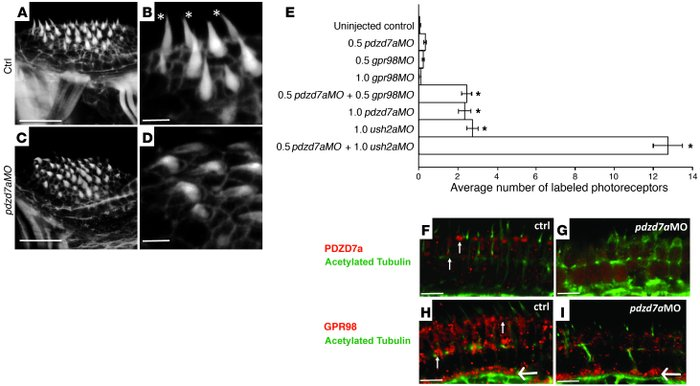 Loss of Pdzd7a results in structural defects, retinal cell death, and pr...