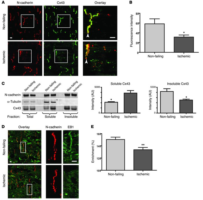 JCI - Limited forward trafficking of connexin 43 reduces