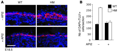 API2 treatment inhibits hyperplasia of HM ENCs during development. (A) A...