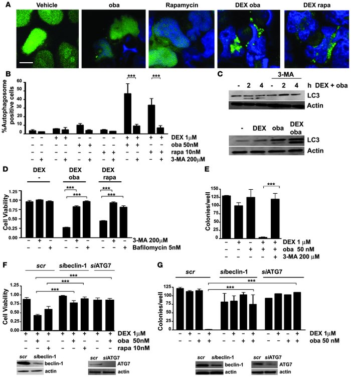 Obatoclax induces autophagy in GC-resistant ALL cells. (A) After transie...