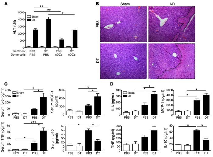 cDCs confer protection in I/R. CD11c-DTR mice were administered PBS or D...