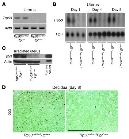 Efficient deletion of uterine Trp53.     (A and B) Trp53 mRNA was undete...