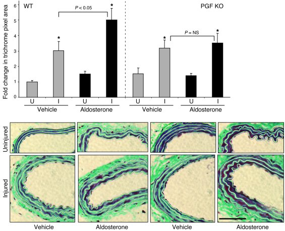 Lack of aldosterone-enhanced ECM deposition after vascular injury in PGF...