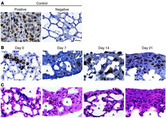 Immunohistochemical staining of highly metastatic osteosarcoma cells for...
