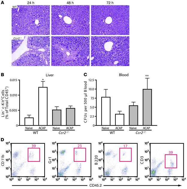 Jci Ccr2 Mediates Hematopoietic Stem And Progenitor Cell