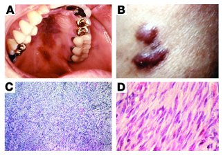Kaposi sarcoma. (A) Gross lesions of KS on the palate of a patient with ...
