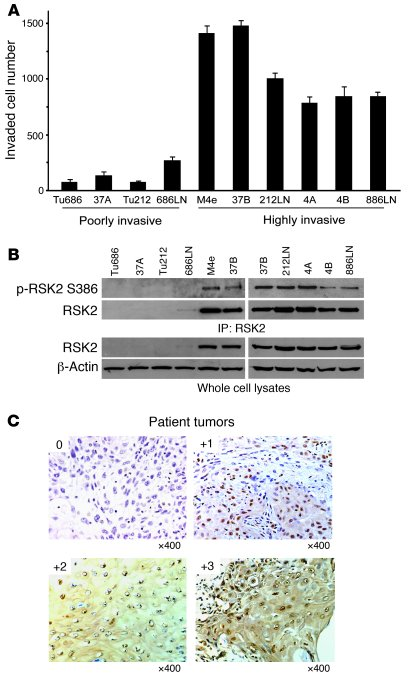 RSK2 is overexpressed in a group of highly invasive human HNSCC metastat...