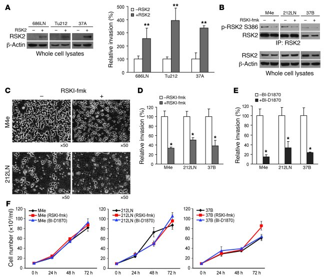 Expression of RSK2 promotes in vitro HNSCC cell invasion. (A) Enforced e...
