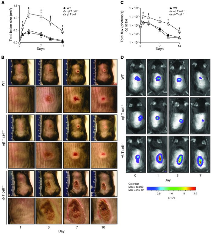 γδ but not αβ T cell–deficient mice develop markedly larger skin lesions...