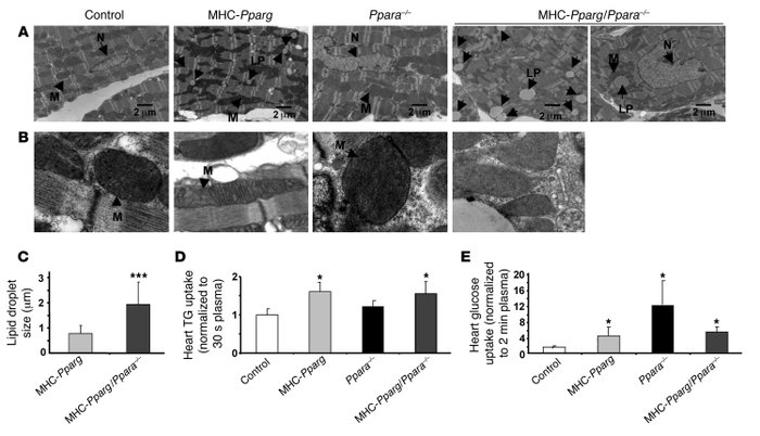 JCI - PPARγ-induced cardiolipotoxicity in mice is