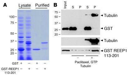 REEP1 C-terminal cytoplasmic domain is sufficient for microtubule intera...