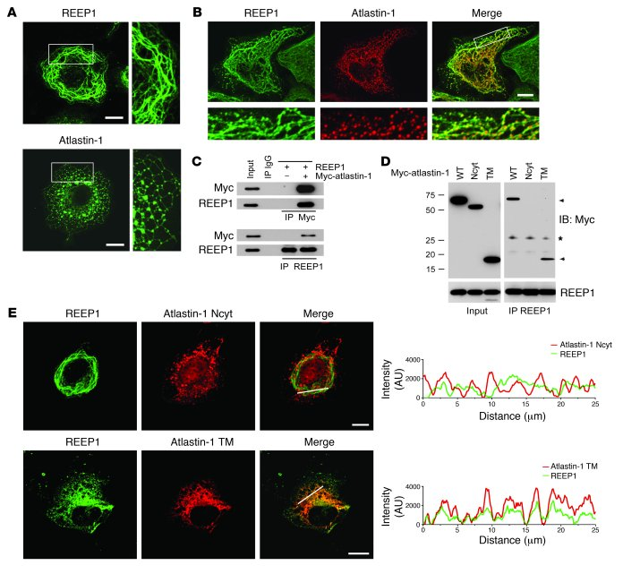 REEP1 interacts with atlastin-1 through intramembrane hydrophobic domain...