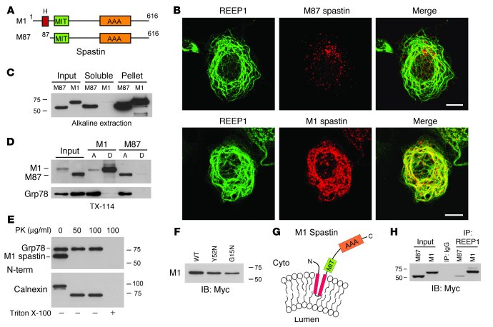 REEP1 interacts preferentially with the M1 isoform of spastin. (A) A sch...