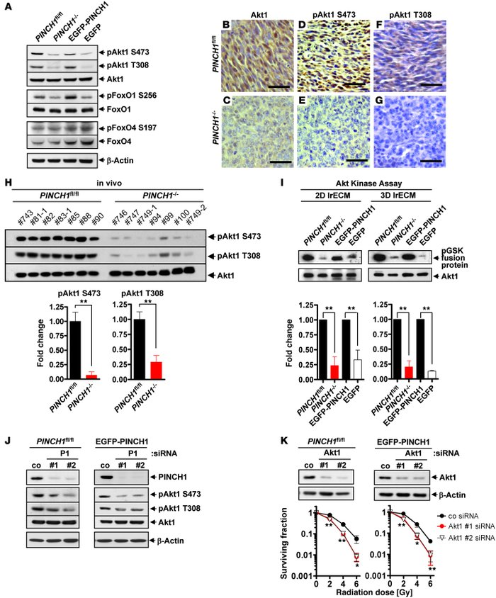 PINCH1 is critical for Akt1 phosphorylation and kinase activity. (A) Wes...
