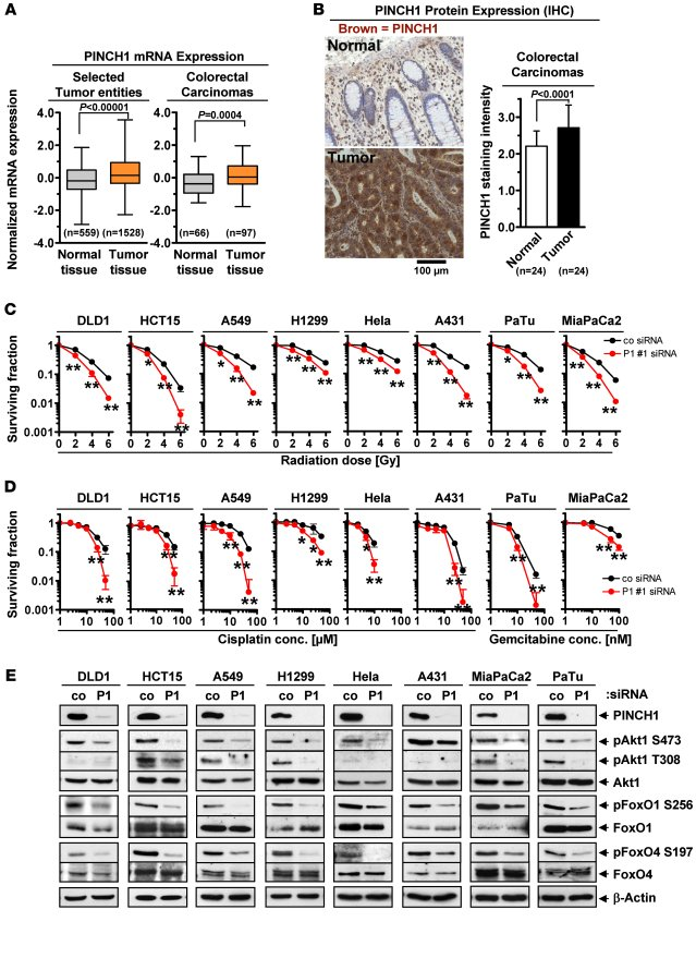PINCH1 mRNA and protein expression in colorectal carcinoma and effects o...