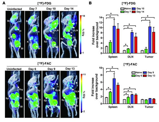 Metabolic PET imaging with [18F]-FDG and [18F]-FAC detects multiple site...