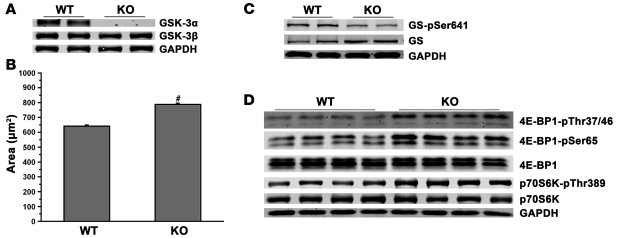 Deletion of Gsk3a leads to cardiac hypertrophy.     (A) Deletion of Gsk3...
